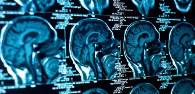 İlk kez yapay beyin hücreleri üretildi