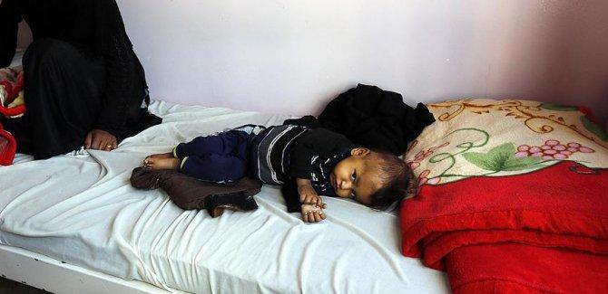 Yemen'deki kolera salgınının bilançosu ağırlaşıyor