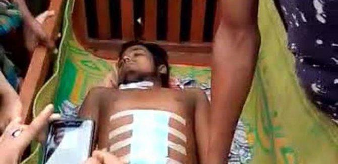 Arakanlı Müslümanlar organ mafyasının elinde