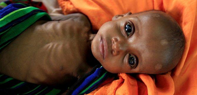 'Her 5 saniyede bir çocuk açlıktan ölüyor'