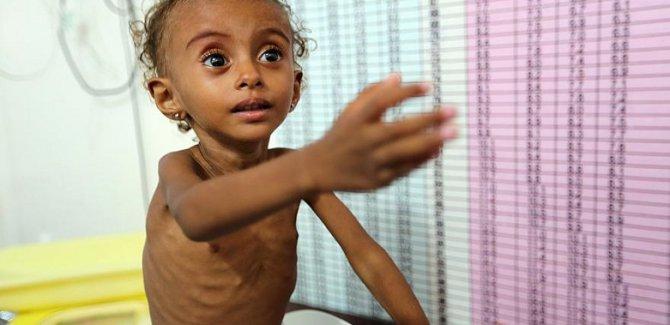 14 milyon insan açlıktan ölebilir