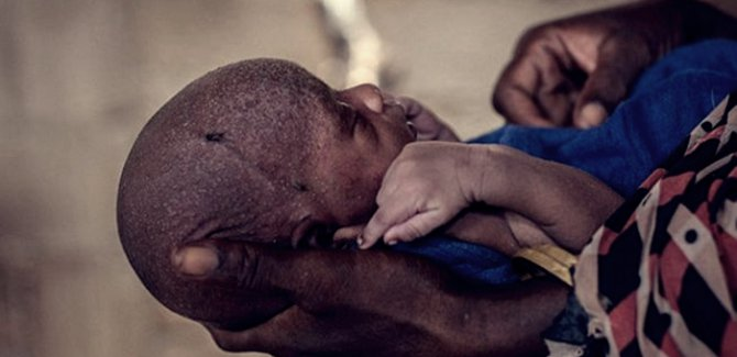Nijerya'da 132 çocuk yetersiz beslenmeden dolayı öldü!