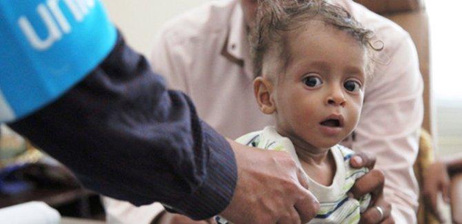 UNICEF: Yemen'de 6 bin 700 çocuk öldü