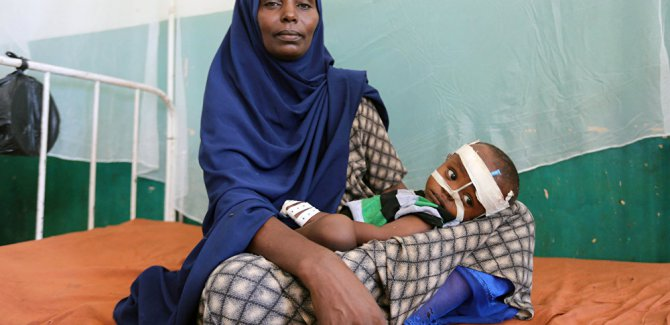 BM: 113 milyondan fazla insan akut açlıkla mücadele ediyor
