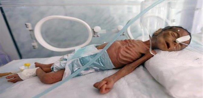 Yemenli Çocuklara Ödetilen Bedel