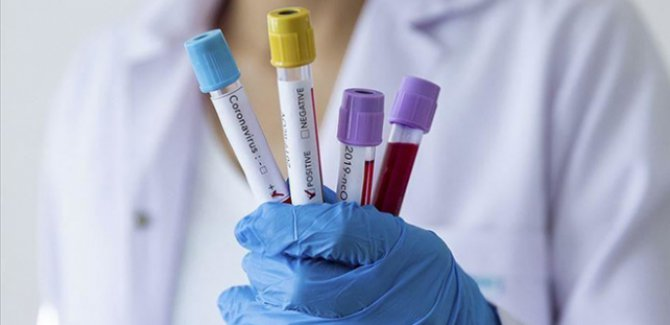 Koronavirüs Avrupa'da hızla yayılıyor:İsveç'te 4 vaka daha