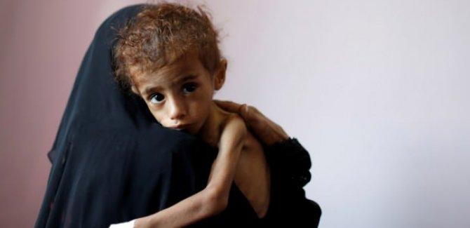 Guterres: Yemen kıtlık tehlikesi ile karşı karşıya, milyonlarca yaşam kaybedilebilir