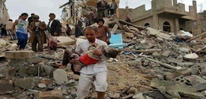Binlerce Yemenli Çocuk Hayatını Kaybetti