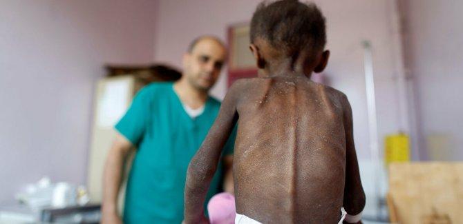 BM: Yemen'de milyonlarca çocuk açlık tehdidiyle karşı karşıya