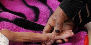 'Yemen, dünyanın en büyük insani krizlerinden birini yaşıyor'