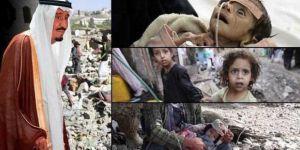 UNICEF: Her 10 Dakikada Bir Yemenli Çocuk Ölüyor