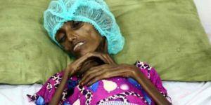 Yemen Dünya Tarihinin En Kötü Durumuyla Karşı Karşıya