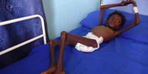 400 Bin Çocuk Açlık Krizi ile Karşı Karşıya