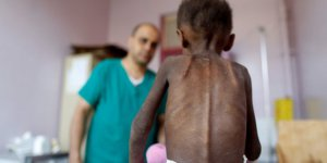 Yemen'de Trajedi: Her 11 Dakikada Bir Çocuk Ölüyor