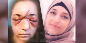 İsrail Barbarlığı, Filistinlilere keyfi şiddet