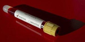 Avustralya'da koronavirüs vakası sayısı 61'e yükseldi