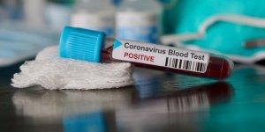 Fransa'da koronavirüsten ölenlerin sayısı 10 bin 869'a yükseldi